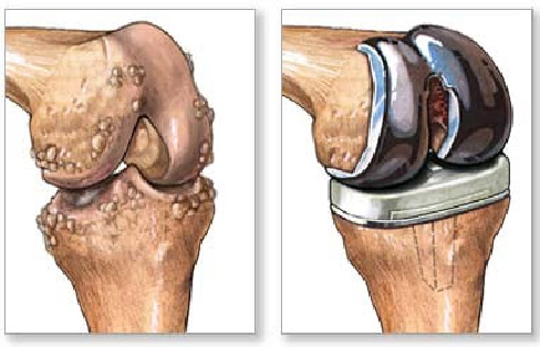 13++ Knee replacement with severe osteoporosis viral